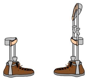 長下肢装具と短下肢装具