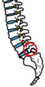 脊椎分離症